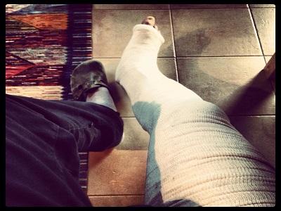 la gamba ingessata del berna